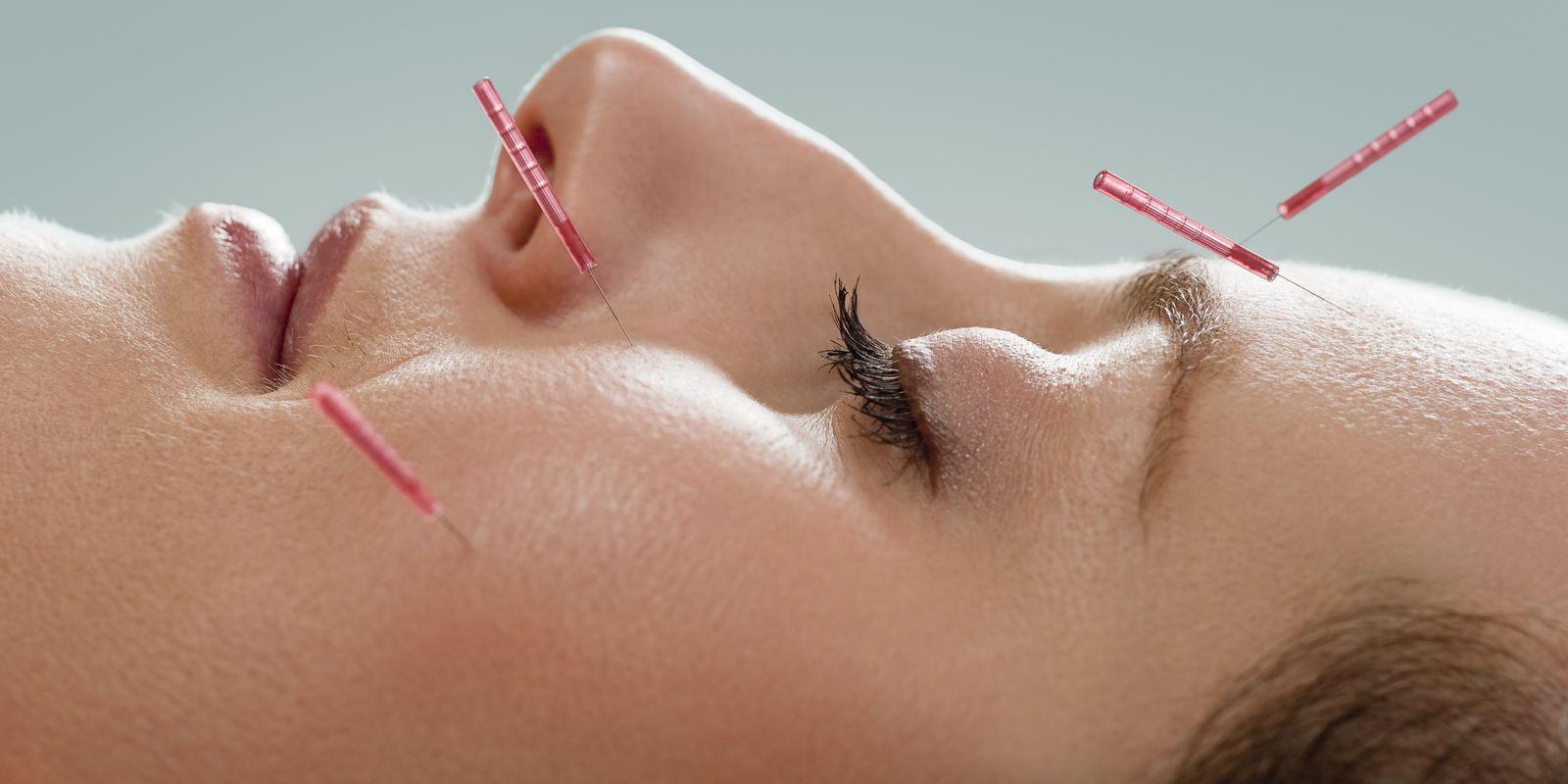 Akupresura a akupunktura