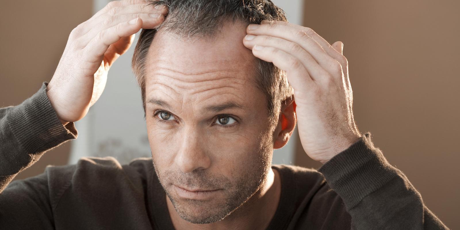 Alopecie neboli ztráta vlasů u žen a mužů