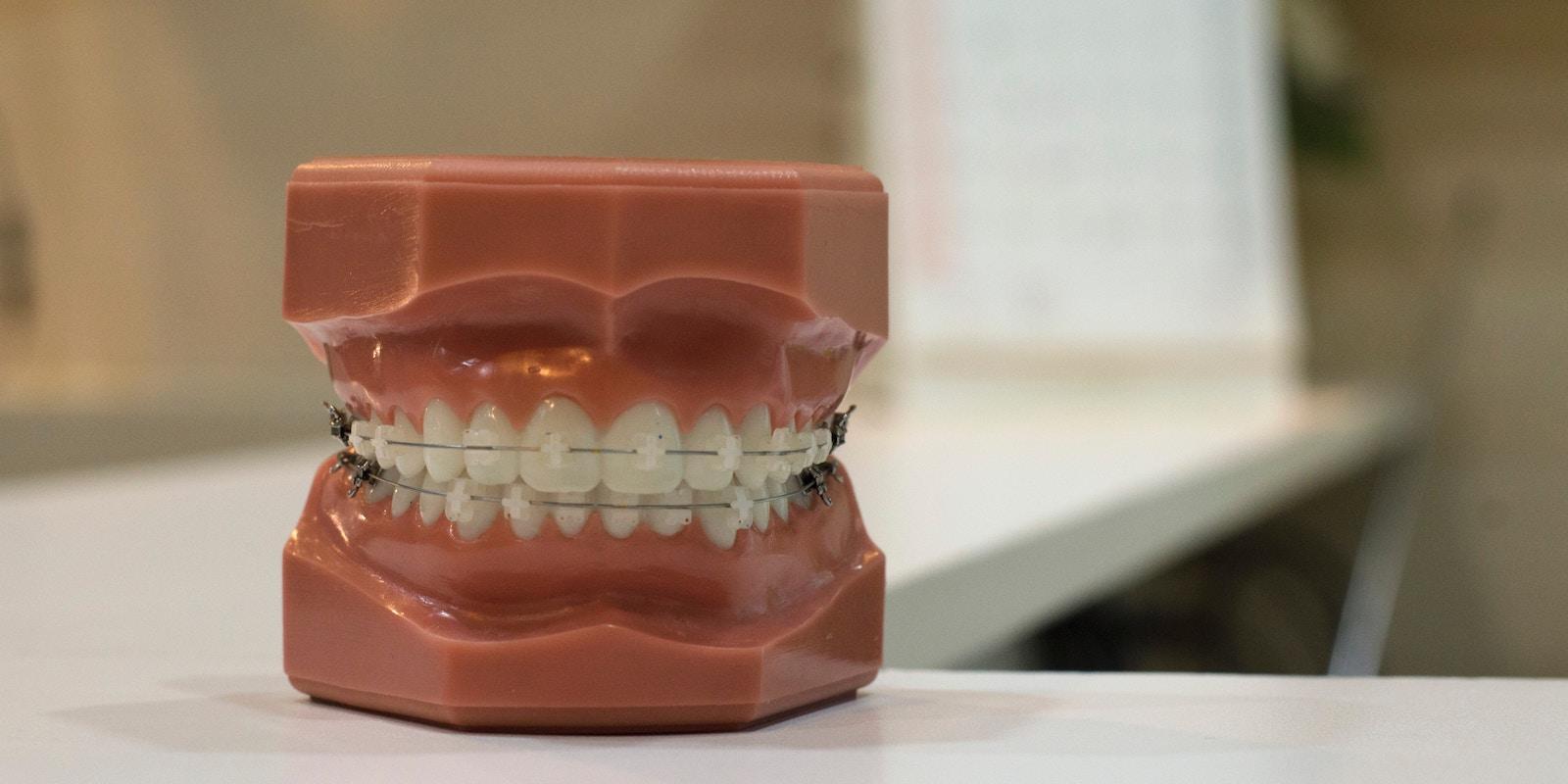 K čemu je fluor v zubních pastách?
