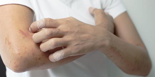Rostlinné a éterické oleje na dermatitidu