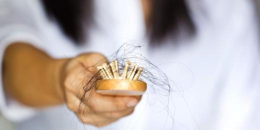 Zastavte padání vlasů přírodními prostředky