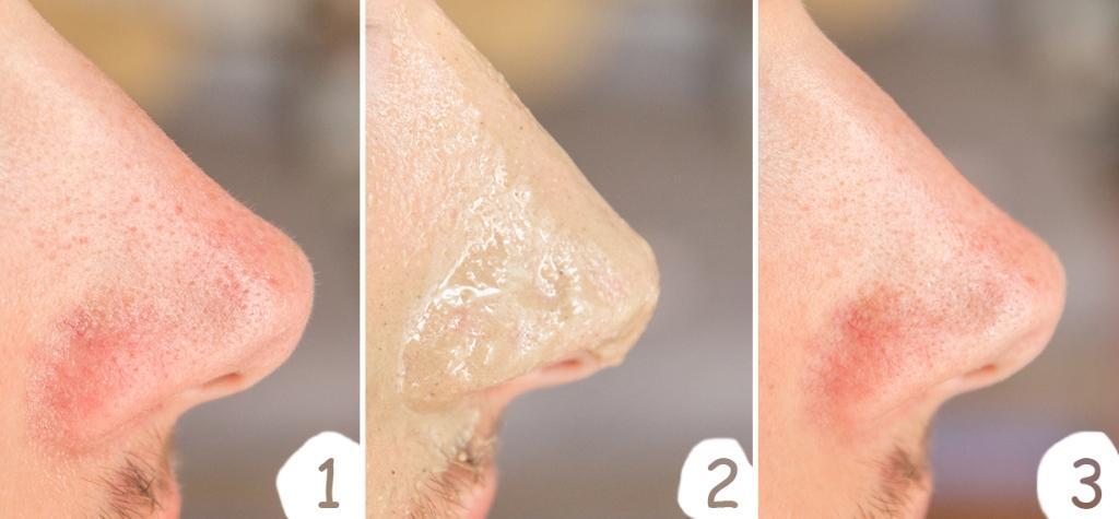 Recenze: Litokomplex Aktiv (Hloubková hygiena kůže)