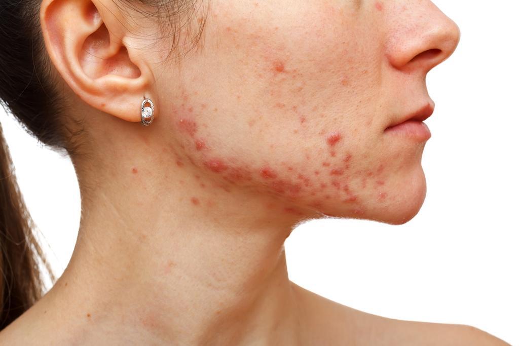 Ze zkušeností: Triphalou na akné
